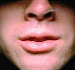 Kako se izboriti sa lošim dahom?