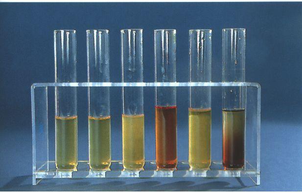 Urin neprirodne boje