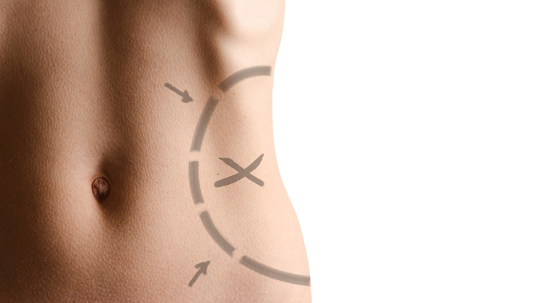 Operacija gojaznosti i trudnoća