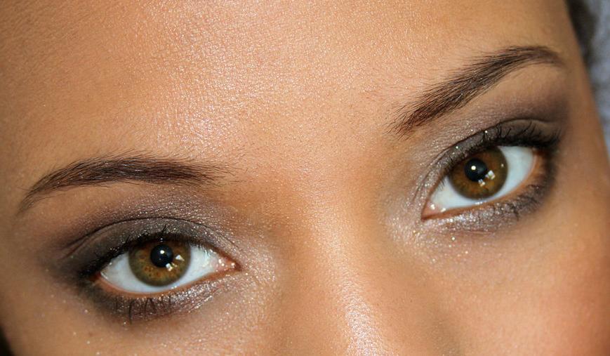 Sindrom suvog oka
