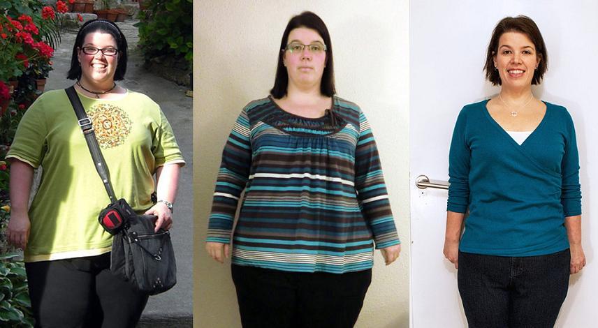 Gojaznost mladih i operacije