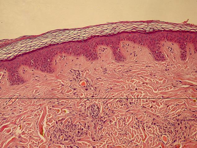 Koža iz matičnih ćelija