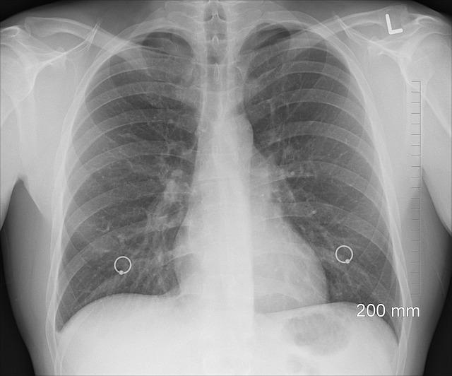 Deluju bezazleno: Ova dva simptoma prvi su znak raka pluća