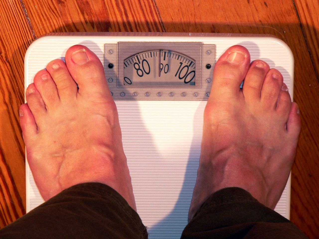 Gojaznost – 5 ključnih pitanja
