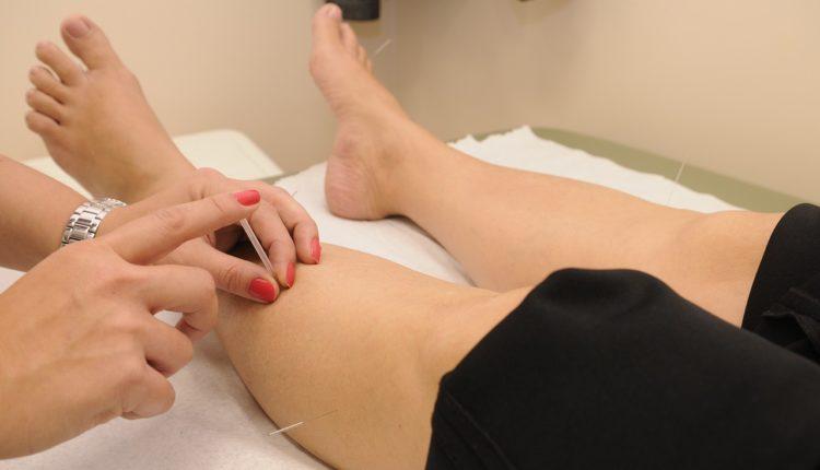 Akupunktura efikasno leči ovih 12 stanja
