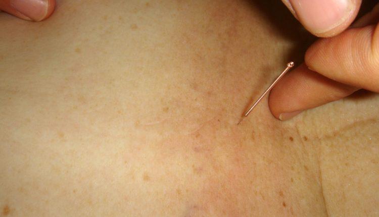 Akupunktura: odgovori stručnjaka na najčešće postavljana pitanja