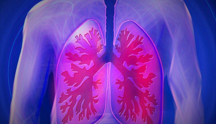 Pet znakova koji pokazuju da je vašim plućima hitno potrebna pomoć