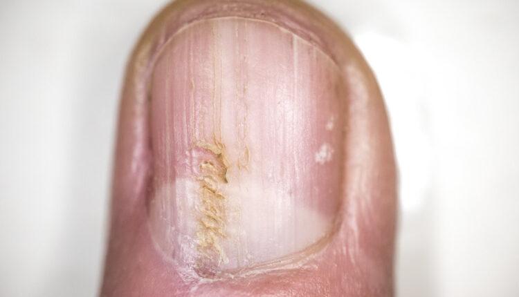 Kako da se zauvek rešite gljivica na noktima