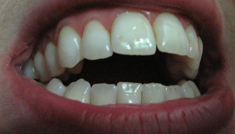 Kako da ekspresno otklonite zubobolju!